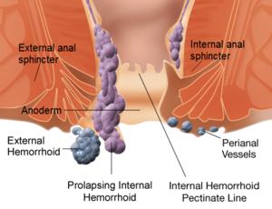 hemoroizi poza